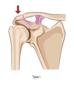 Type 1 ACJ sprain
